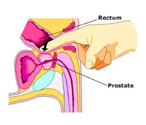 Происхождение предстательной железы